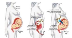 Eritroblastose fetal ou doença hemolítica do recém-nascido
