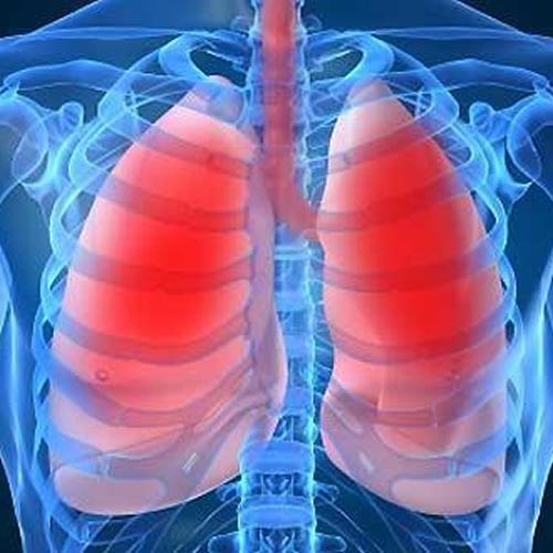 Hipertensão pulmonar