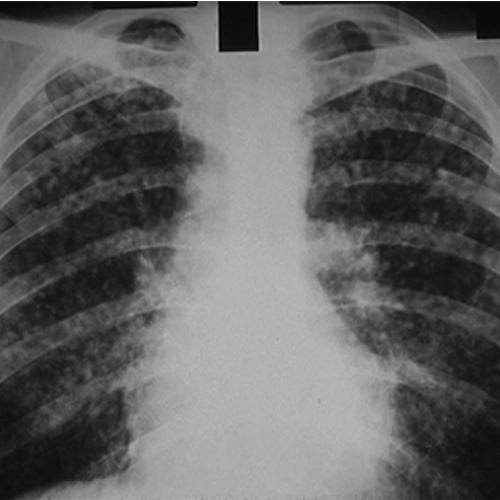 Pneumoconiose