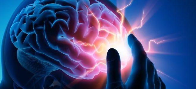 AVC e Doenças cérebro-vasculares