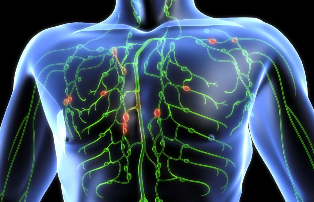 linfoma-corpo