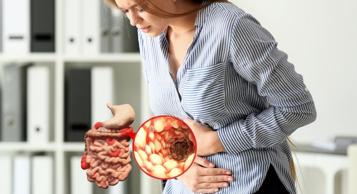 Sintomas da Doença de Crohn