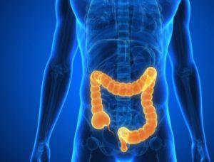 Doença de Crohn Intestino