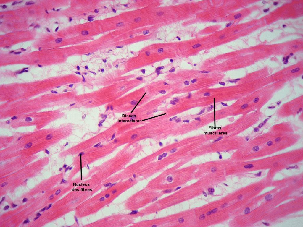 Sistema muscular - Músculo estriado cardíaco