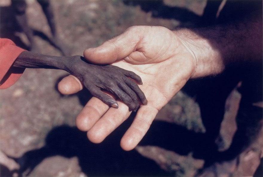 Garoto africano e voluntário