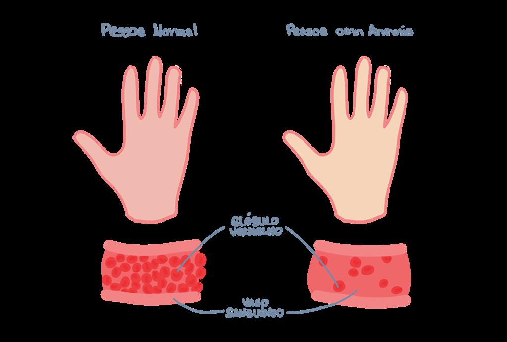 Hemácias - Anemia