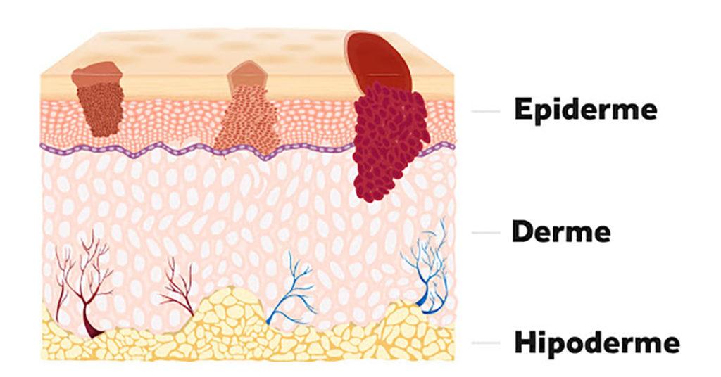Pele humana - Camadas da pele
