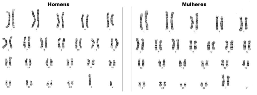 Cromossomos - Cariótipos humanos