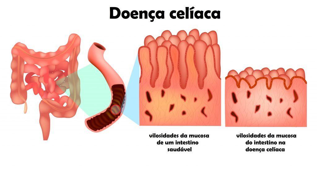 Doença celíaca - Alterações no intestino