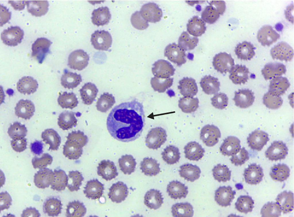 Neutrófilo (seta preta) com núcleo em bastão. (Foto retirada do site do Laboratório de Análises Clínicas e Ensino em Saúde - LACEN - da UFG).