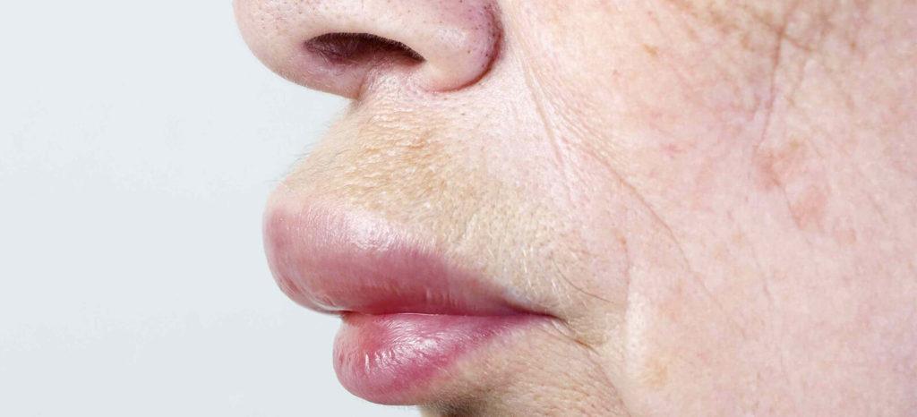 Alergias - Inchaço no lábio