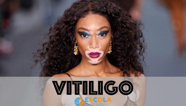 Vitiligo - Modelo canadense Winnie Harlow
