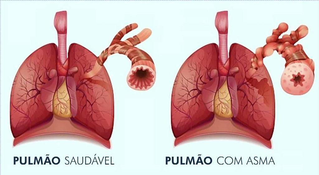 Asma - Diferenças entre um pulmão saudável e um pulmão asmático